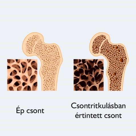 osteoporosis diétája